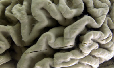 Photo of a brain section with Alzheimer's disease