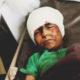 Photo of Yemeni child injured in Saudi-led airstrike