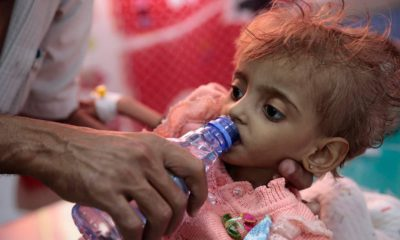 Photo of a hungry Yemeni child being fed.