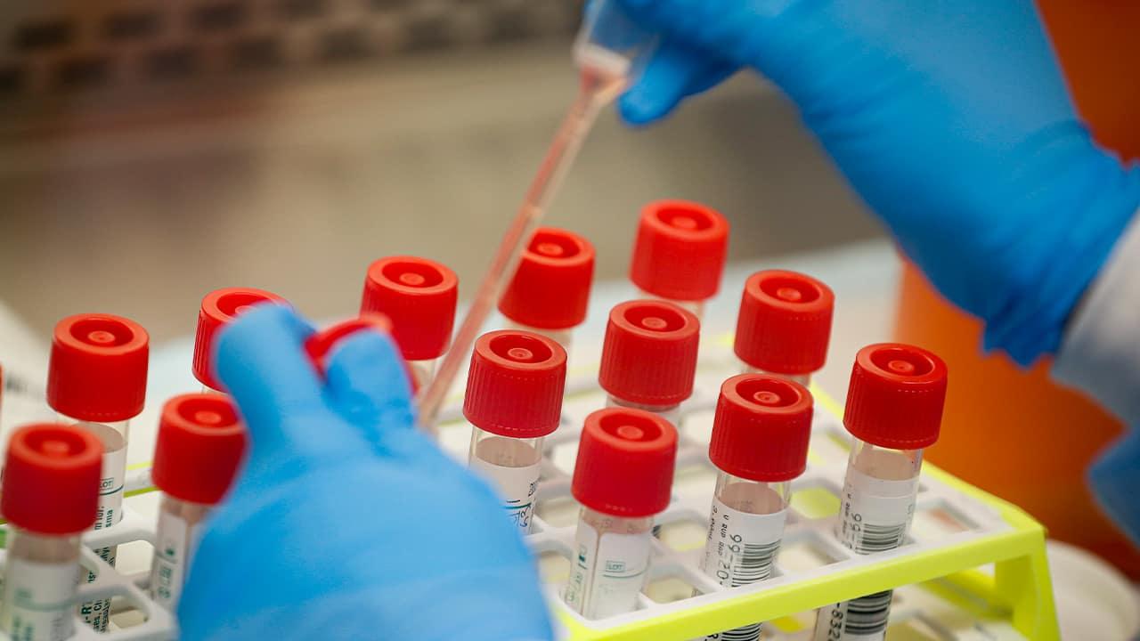 Photo of coronavirus patient samples