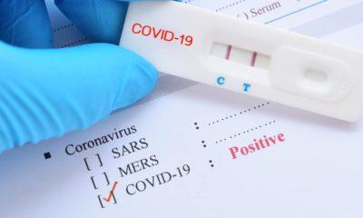 Photo of test sample marked positive for the coronavirus